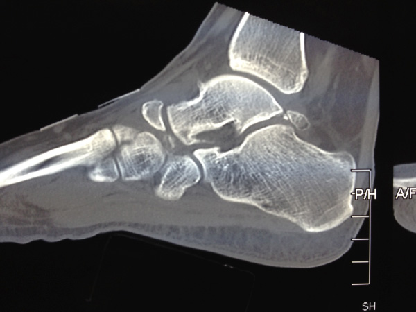 There is a small bone in the back of the ankle called the os trigonum. This may be involved in posterior impingement and require surgical removal.