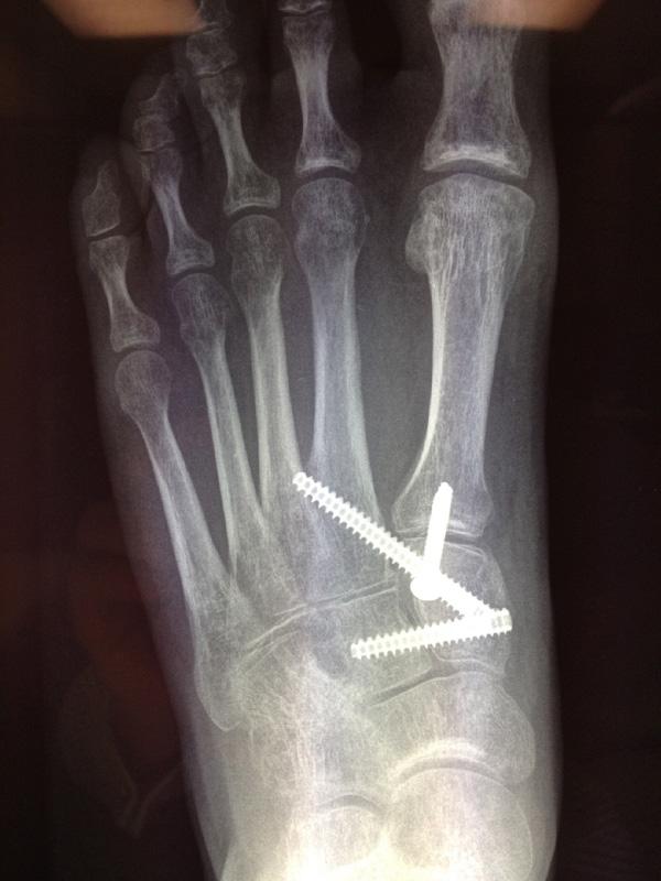 foot-instability-lisfranc