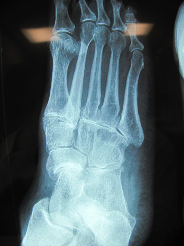 foot-midfoot-arthritis