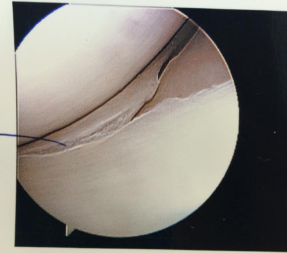 torn-meniscus