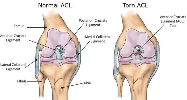 ACL-tear-18