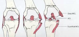 Discard those knee braces 2
