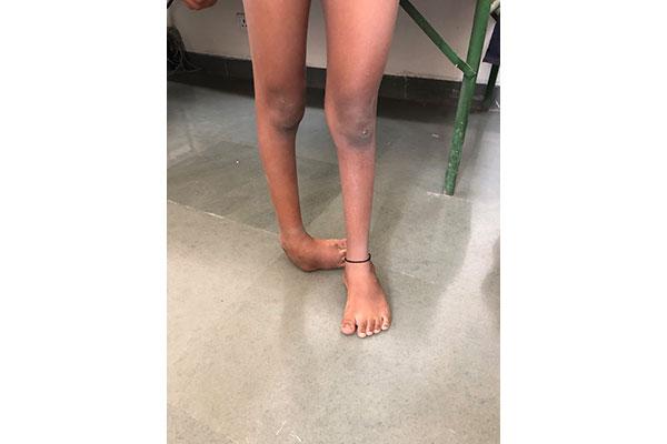 foot-surgery